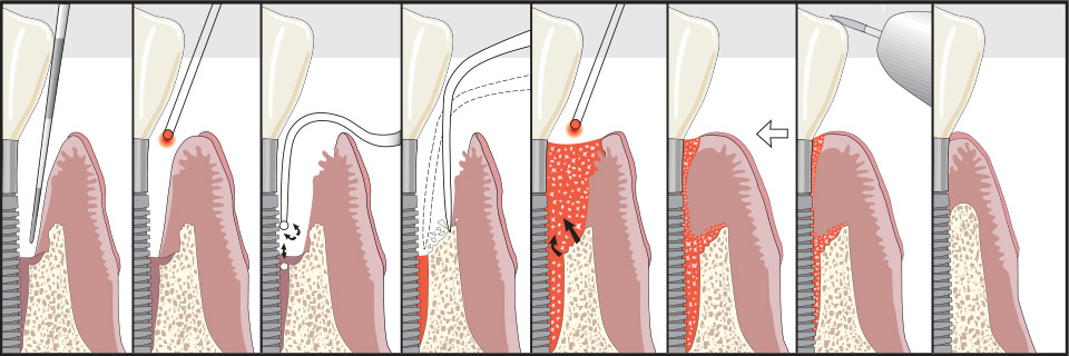 save dental implants with LAPIP Hingham, MA