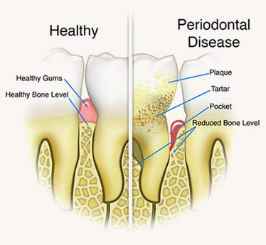 signs of periodontal disease